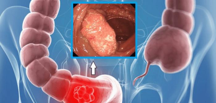 Рак прямой кишки первые признаки, симптомы, ощущения